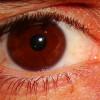 Rapport entre la vue et les maux de tête